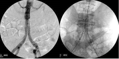 endoprothèse aortique en ambulatoire à l'hôpital Ambroise Paré