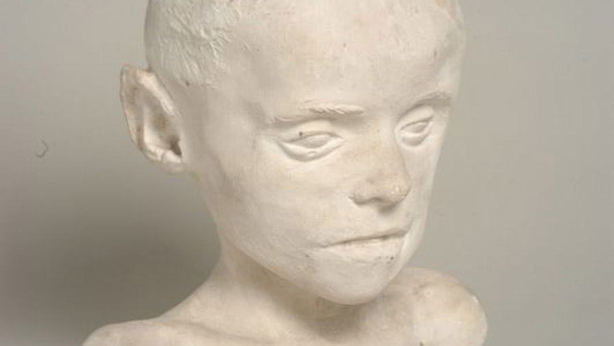 Buste de Bourneville, plâtre.