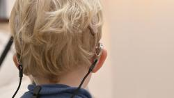 Hôpital Robert-Debré AP-HP : Premières activations en France d'un implant cochléaire en pédiatrie le jour même de l'intervention chirurgicale