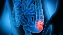 Un déséquilibre du microbiote intestinal favorise la survenue d'un cancer colorectal