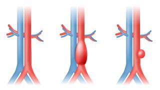 Première pose d'endoprothèse aortique en ambulatoire à l'hôpital Ambroise Paré