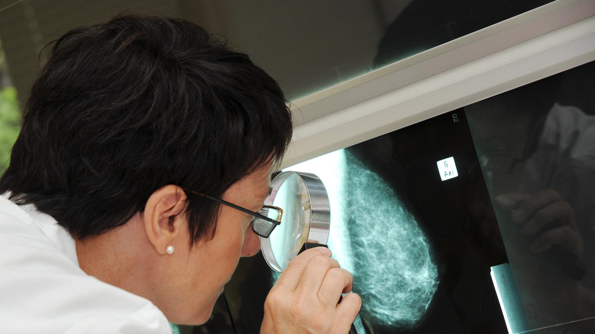 Centre de suivi des femmes à haut risque de cancer du sein et de l'ovaire, hôpital Tenon, AP-HP